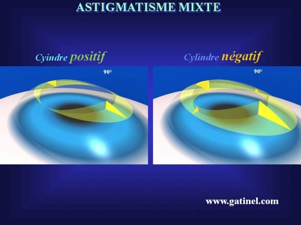 transition strategy positive cylinder area negative mixed astigmatism