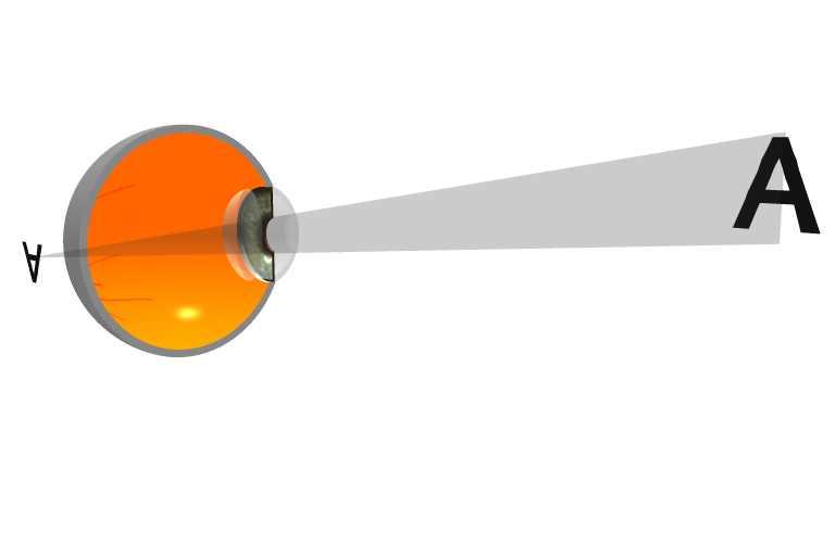 1f47b0ad94 Hypermétropie : l'image la plus nette se forme en arrière de la rétine. L' oeil est trop court (insuffisance de l'ongueur axiale) vis à vis de la  distance ...