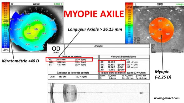 Myopie Axile