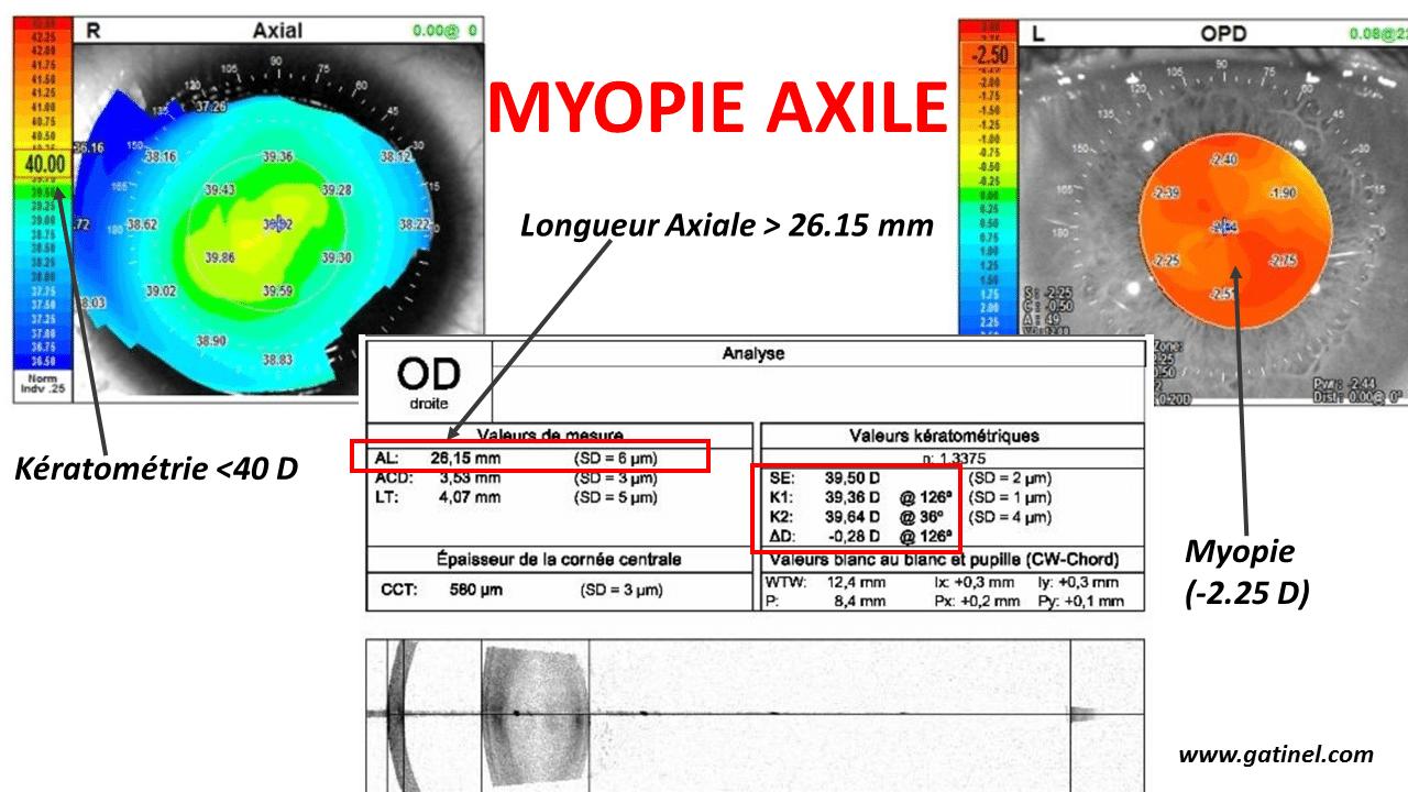 Exemple de myopie axile  malgré le faible degré de myopie (myopie faible   -2.25 D), c est l allongement excessif du globe qui est responsable de  l erreur ... f627e858cafa