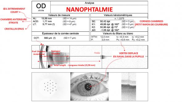 biométrie oeil nanophtalme