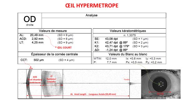 biométrie oeil hypermétrope