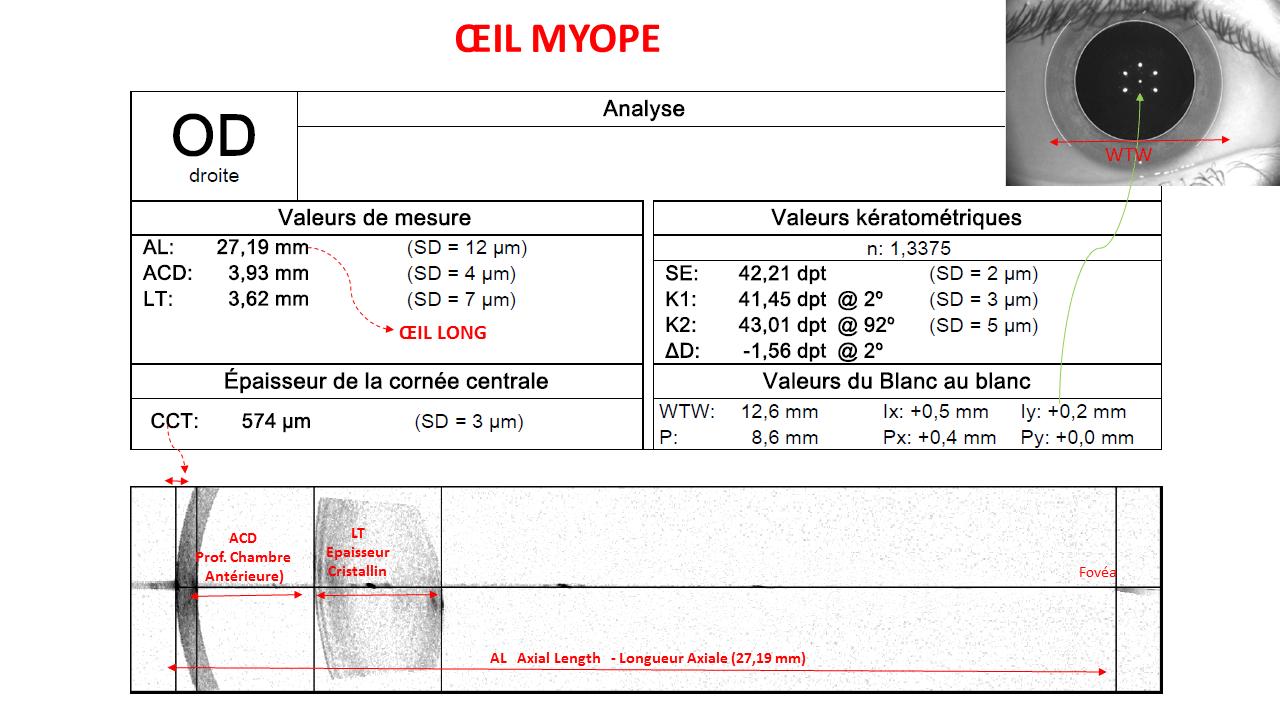 Myopie - Docteur Damien Gatinel ce3e55c47864