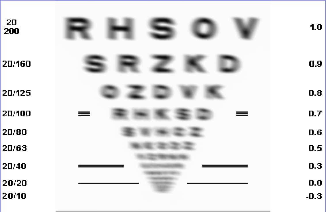 planche d acuité visuelle astigmatisme 6 dioptries eda987d77c19
