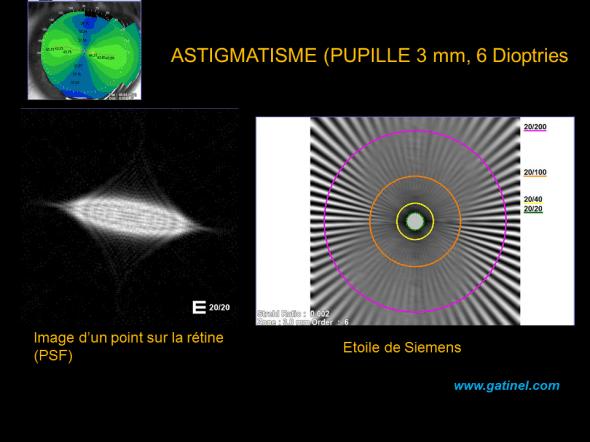 représentation du flou visuel directionnel induit par l'astigmatisme