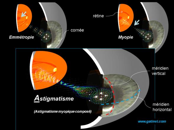 comparaison entre astigmatisme, emmétropie et myopie