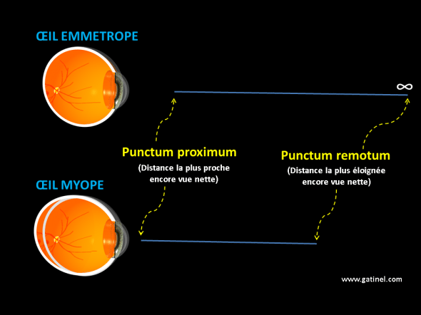 représentation du punctum remotum et du punctum proximum