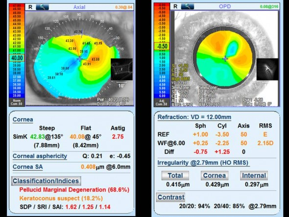 Cartes topographique et aberrométrique (OPD SCAN 3) cicatrice cornéenne
