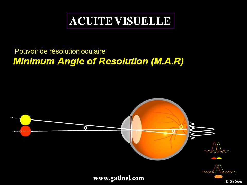 MAR: minimum angle of resolution - doctor Damien Gatinel