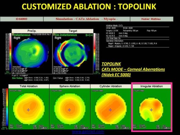 Profil d'ablation guidé par le front d'onde cornéen, à visée cornéoplastique