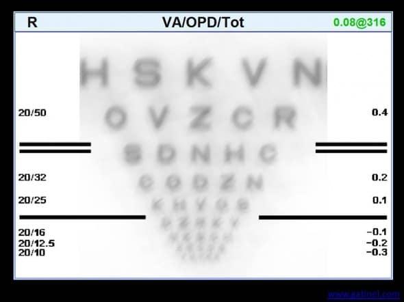 acuite visuelle simulée (convolution) cicatrice cornée