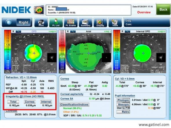 aberrometrie cataracte débutante