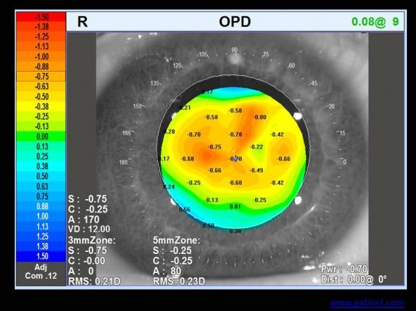 carte OPD réfraction locale dans la pupille postopératoire traitement customisé cornéoplastie