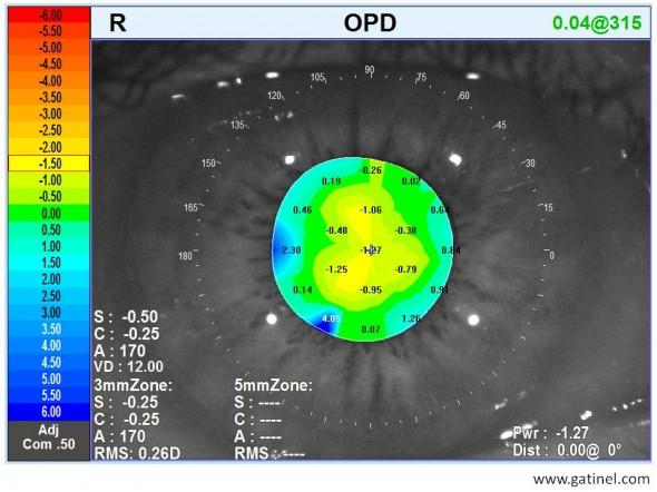 carte OPD cataracte débutante