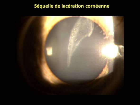 cicatrice cornéenne