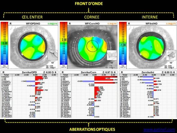 fronts d'onde total, cornéen, interne aberrométrie cicatrice cornée