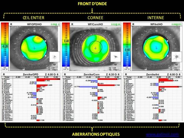 fronts d'onde total, cornéen, interne postopératoire après traitement laser photoablation personnalisée topo guidée
