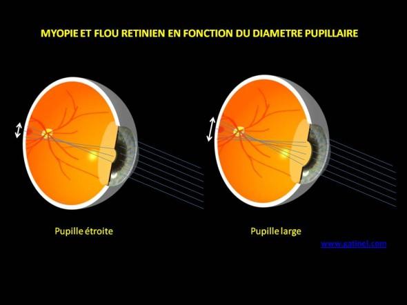 myopie flou rétinien diametre pupillaire