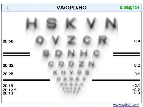 optotypes convolution coma