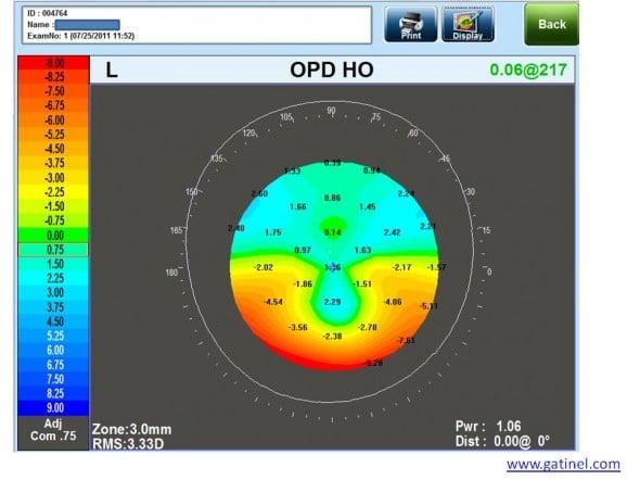 carte OPD HO dégénérescence pellucide marginale