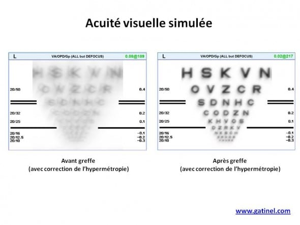 acuite visuelle convolution