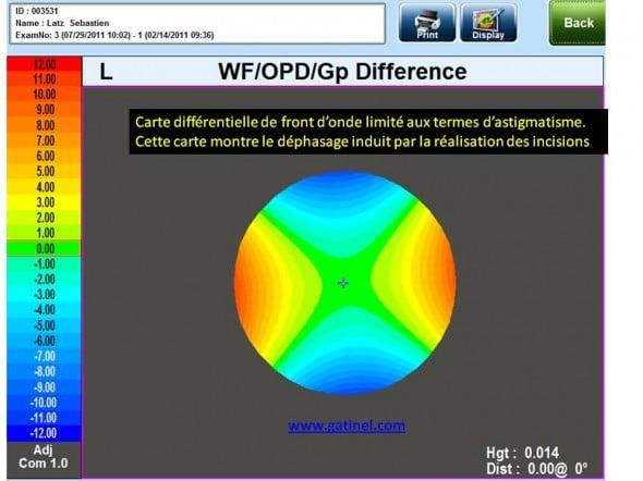 carte différentielle degré 2 front d'onde astigmatisme