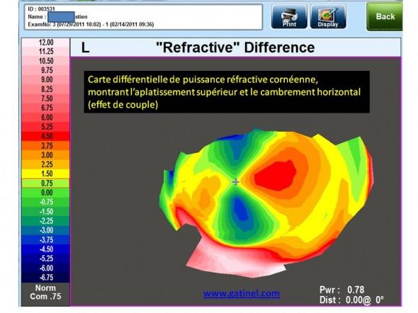 carte différentielle topographie mode réfractif
