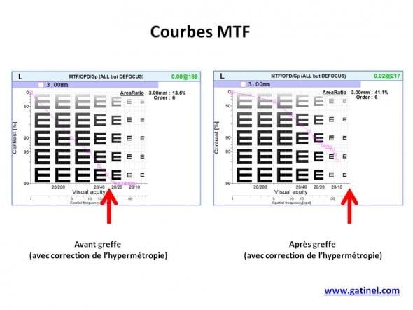 carte MTF