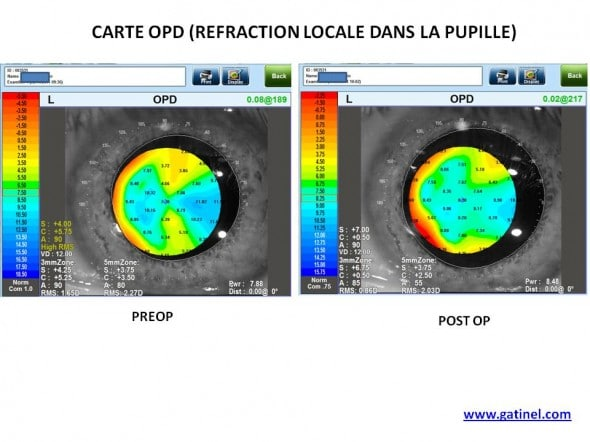 comparaison carte OPD pre post op