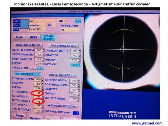 incisions relaxantes laser femtoseconde greffe astigmatisme