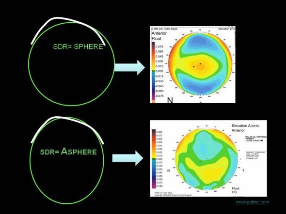 asphere surface de reference aconic topographie élévation