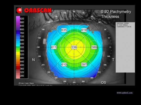 carte tomographique topographie cornéenne pachymétrie Orbscan