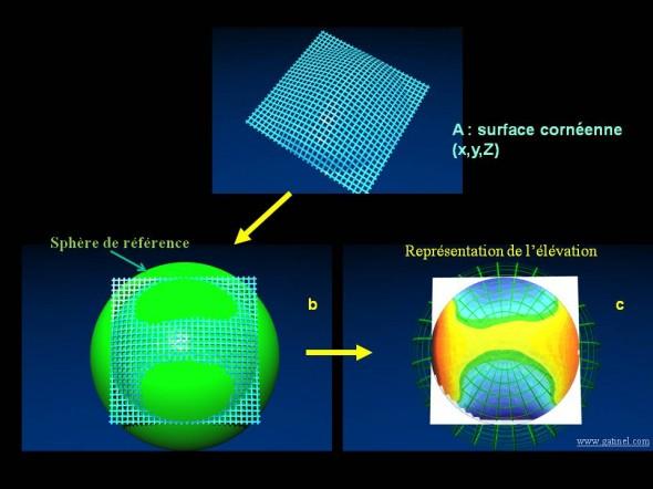 topographie cornéenne elevation calcul sphère de référence