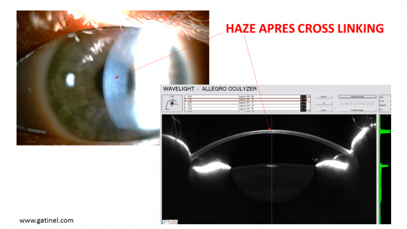 Example of haze (diffuse corneal opacity) after making a cross linking in a matter of 22 years, from the discovery of a Keratoconus linked to the eye rubbing repeated.