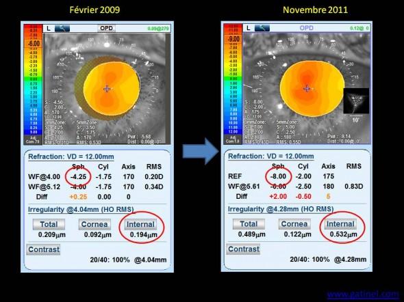 aberrations optiques myopie d'indice