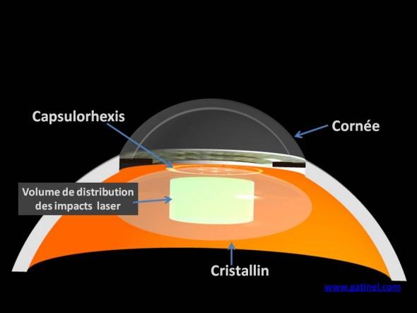 laser femtoseconde cataracte