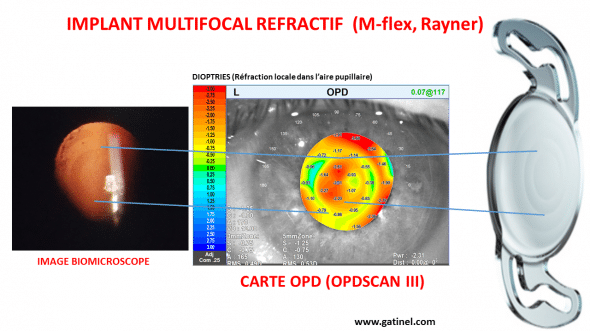 implant M flex multifocal Rayner
