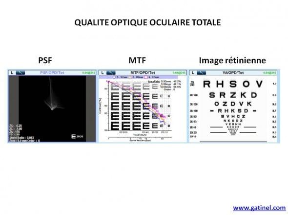 PSF MTF convolution oeil entier