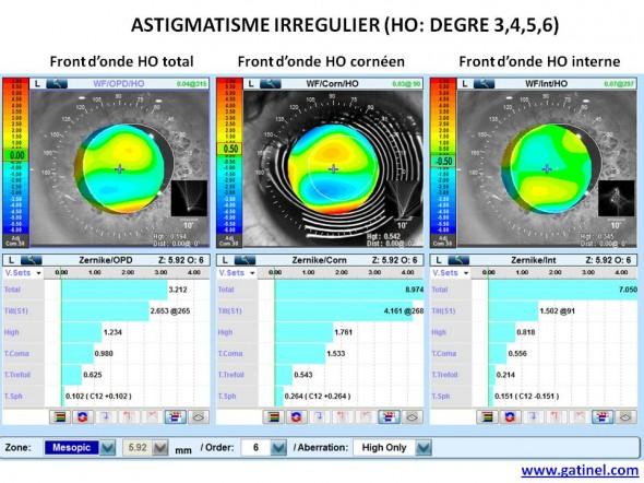 aberrations haut degré astigmatisme irrégulier HOA