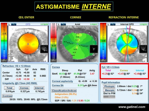 corneal astigmatism and internal conjgues