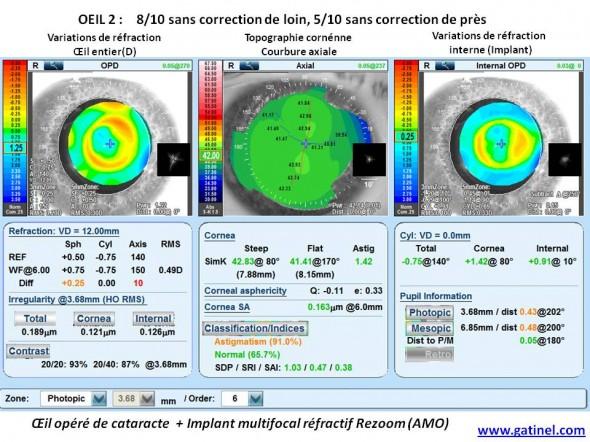 carte Nidek OPD implant multifocal refractif