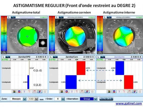 composant zernike astigmatisme compensation implant torique
