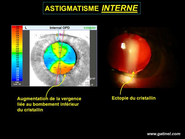 ectopie du cristallin avec augmentation de la vergence inférieure relachement zonulaire