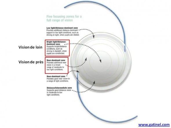 implant multifocal rétractif rezoom