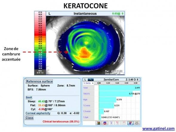 keratocone topographie OPD SCAN III Nidek