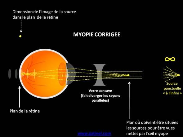 myopie corrigée schéma