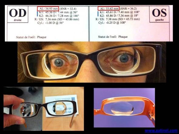 high pathological myopia
