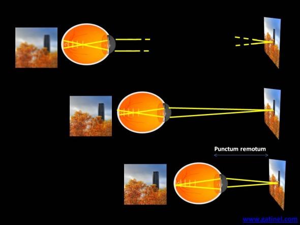 myopie flou et distance d'observation