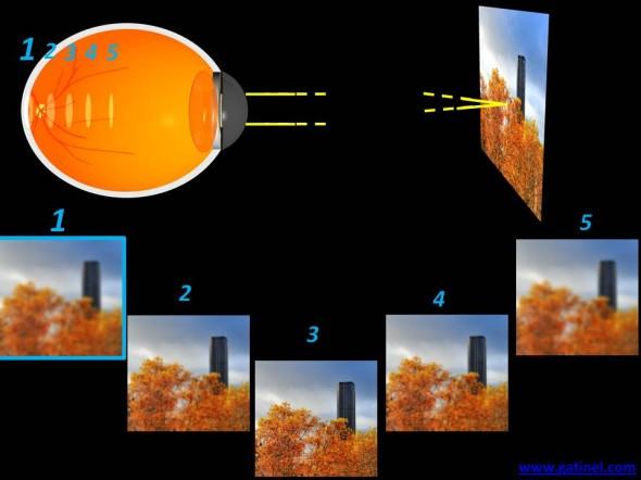 myopie oeil myope plan de l'image