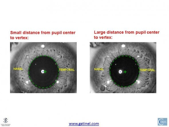 centration with regards to corneal vertex